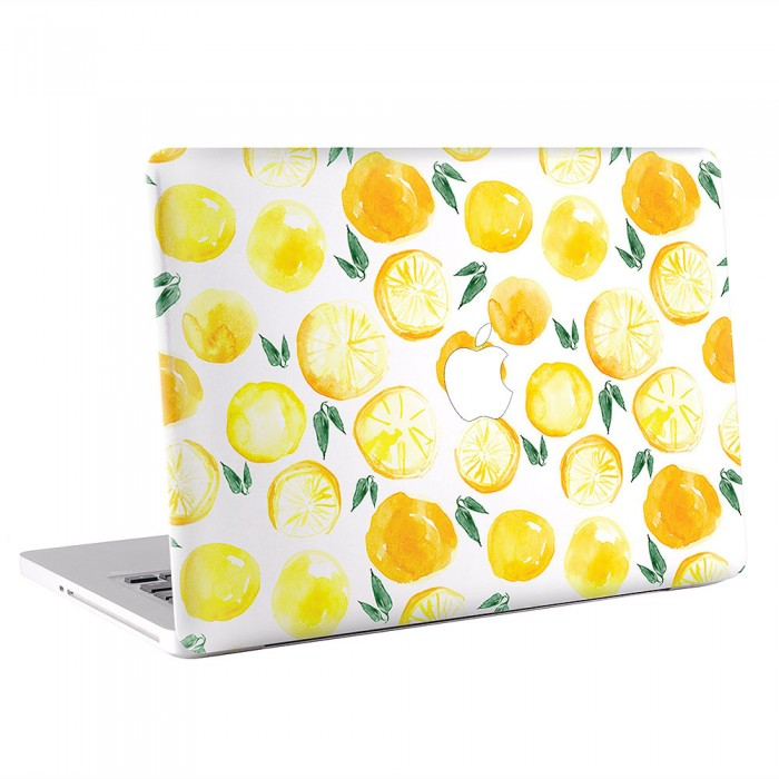 Lemons   MacBook Skin / Decal  (KMB-0633)